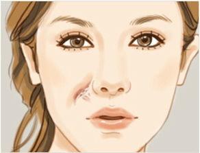 重庆华肤揭秘发生疤痕的原因有哪些
