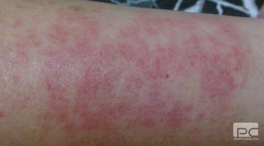 重庆皮肤病医院专家解读夏季如何预防皮肤过敏
