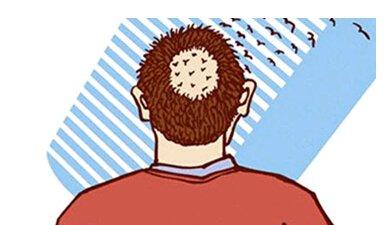 斑秃有哪些常见的症状_重庆治疗斑秃专科医院