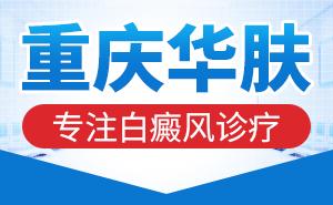 重庆哪医院看儿童白癜风